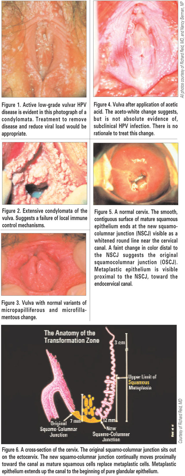 mature vulva pictures human fig cancer screening cervical sharedresources papillomavirus