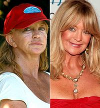 goldie porn goldie hawn plastic surgery results