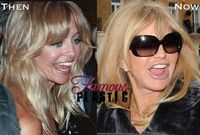 goldie porn goldie hawn plastic surgery that successfully
