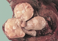mature image wikipedia commons mature teratoma invading lung